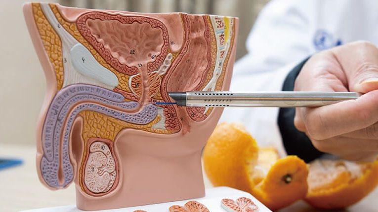 [新聞] 無痛泌尿科內視鏡攝護腺剜除術 尿尿不再『滴滴答答』