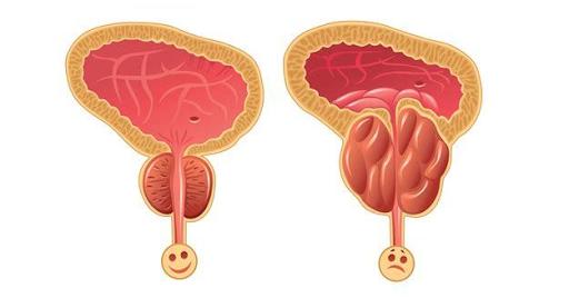 良性前列腺腫大  前列腺肥大診斷