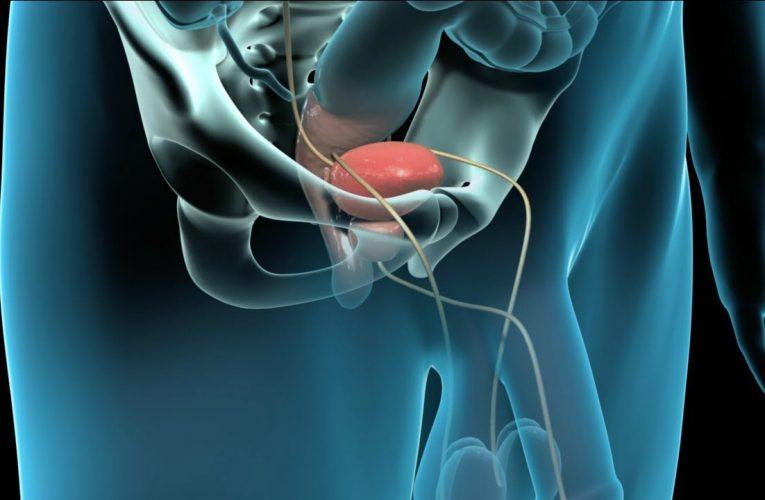 腎盂成形術